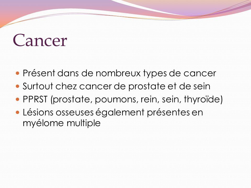 Cancer Présent dans de nombreux types de cancer