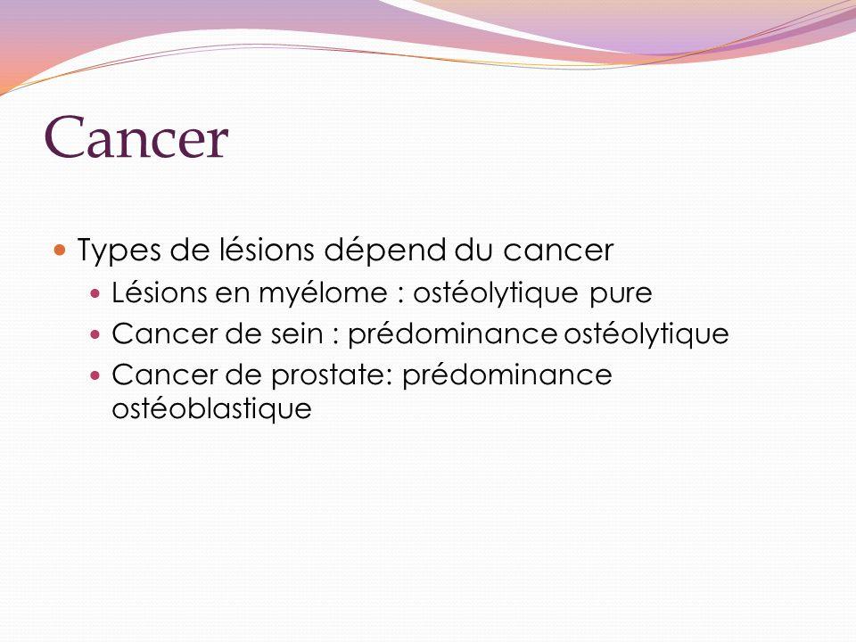 Cancer Types de lésions dépend du cancer