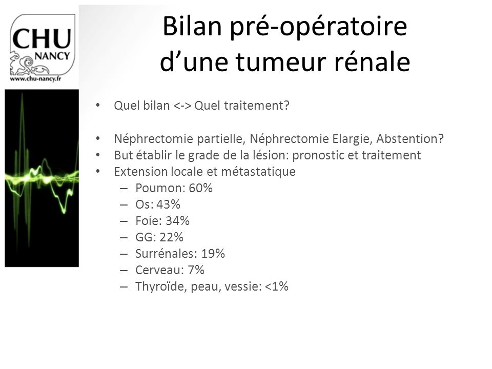 Bilan pré-opératoire d'une tumeur rénale