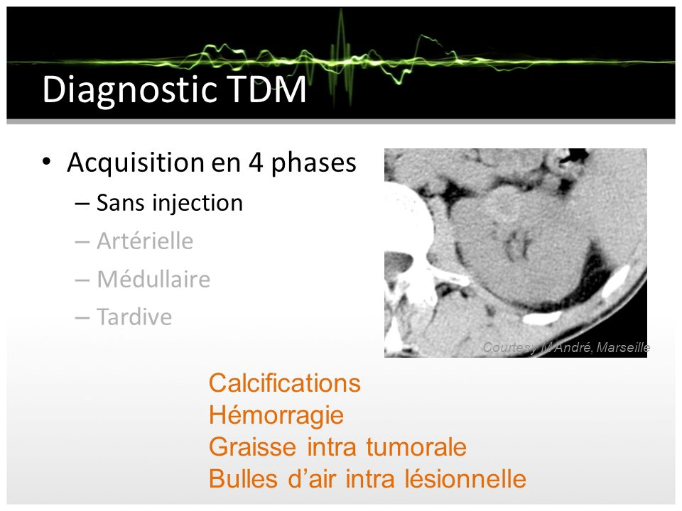 Diagnostic TDM Acquisition en 4 phases Sans injection Artérielle