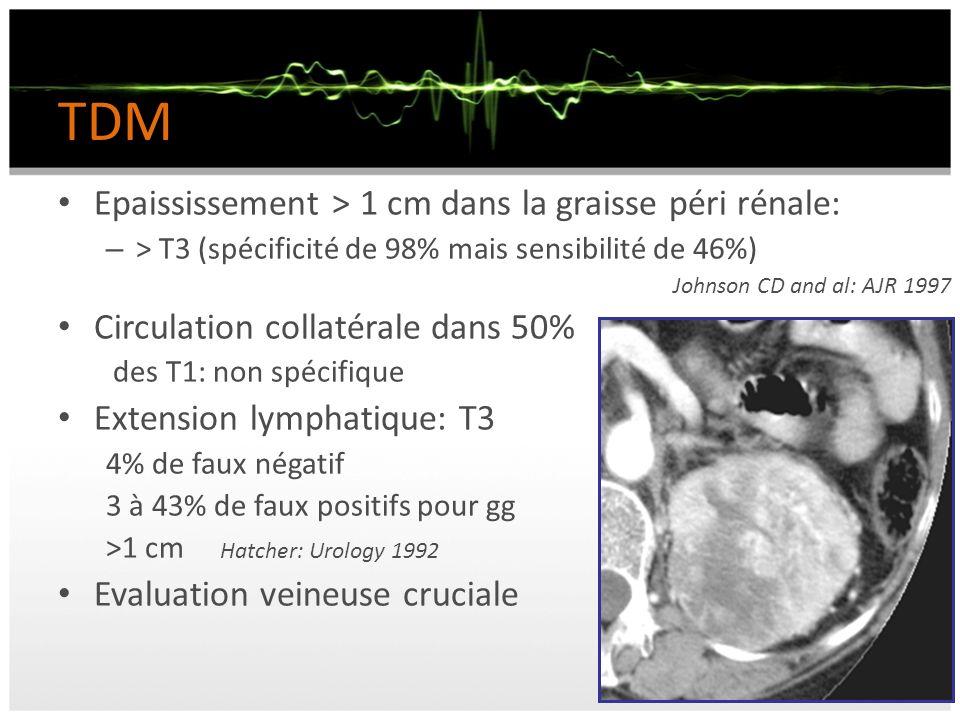 TDM Epaississement > 1 cm dans la graisse péri rénale: