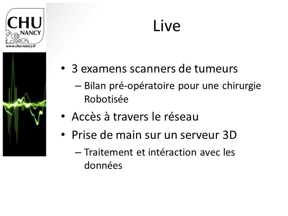 Live 3 examens scanners de tumeurs Accès à travers le réseau