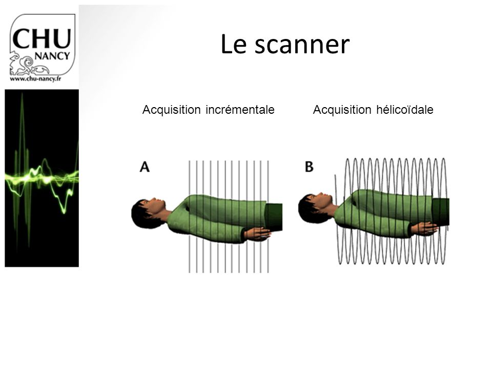 Le scanner Acquisition incrémentale Acquisition hélicoïdale