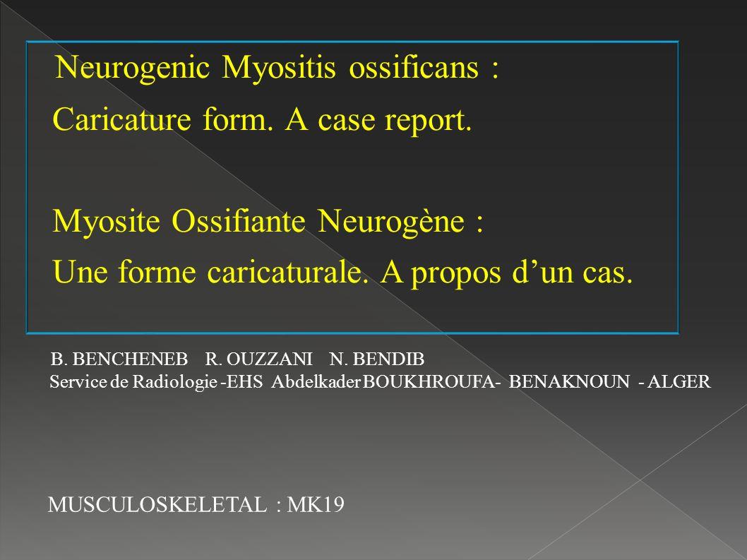 Neurogenic Myositis ossificans :