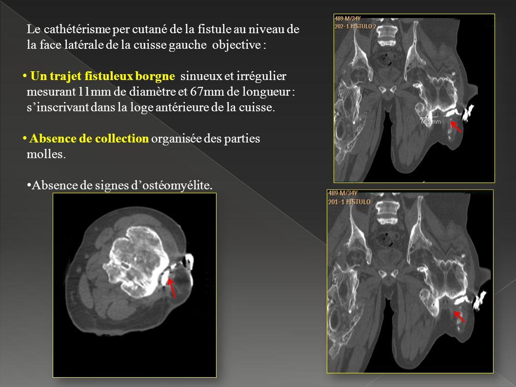 Le cathétérisme per cutané de la fistule au niveau de la face latérale de la cuisse gauche objective :