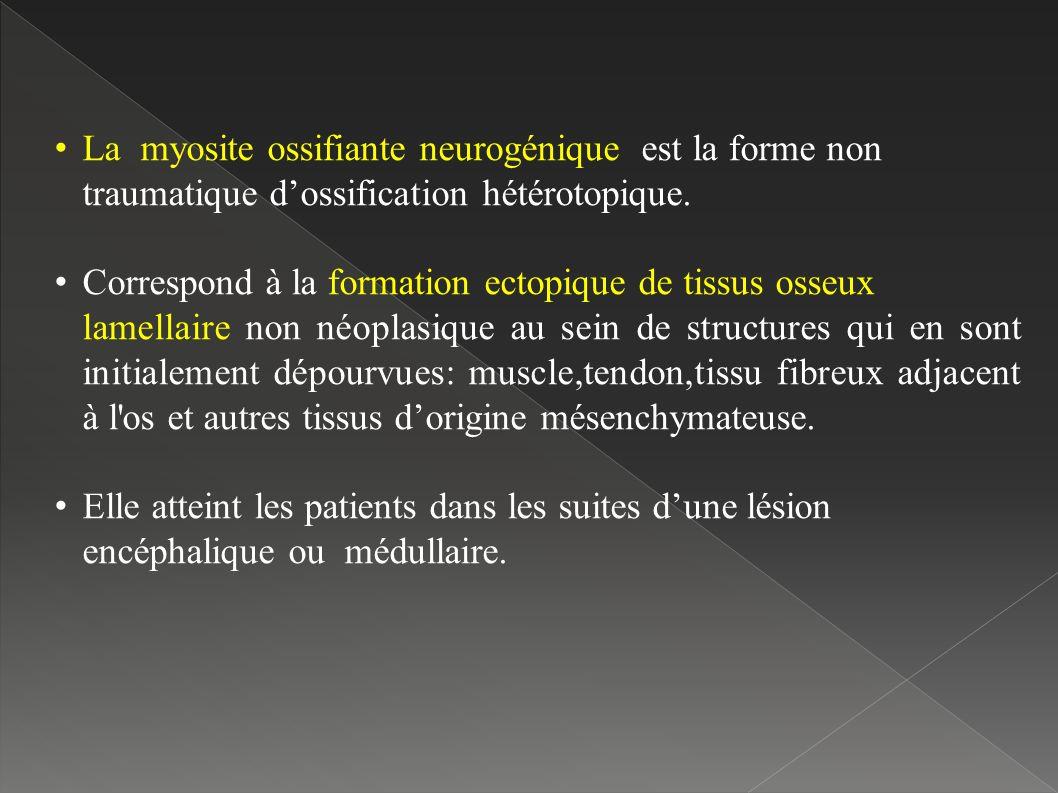 La myosite ossifiante neurogénique est la forme non
