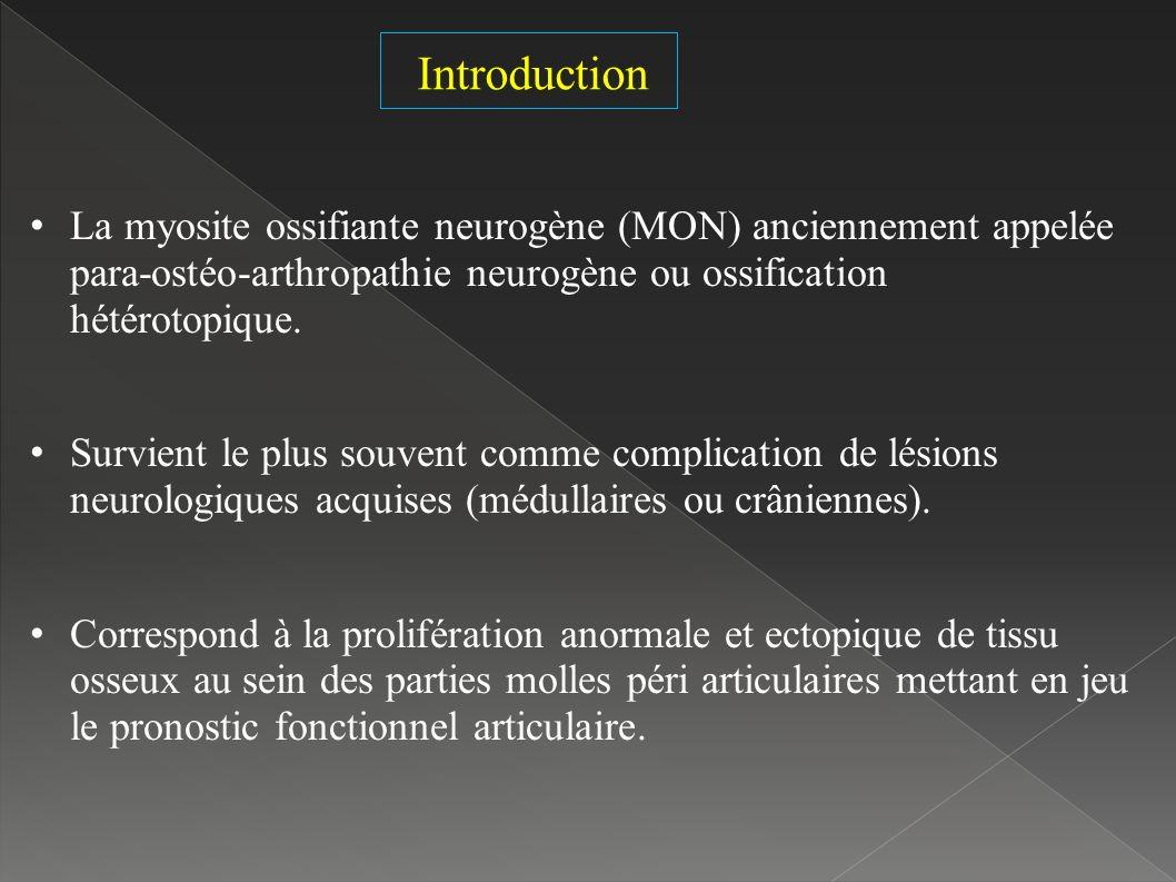 Introduction La myosite ossifiante neurogène (MON) anciennement appelée para-ostéo-arthropathie neurogène ou ossification hétérotopique.