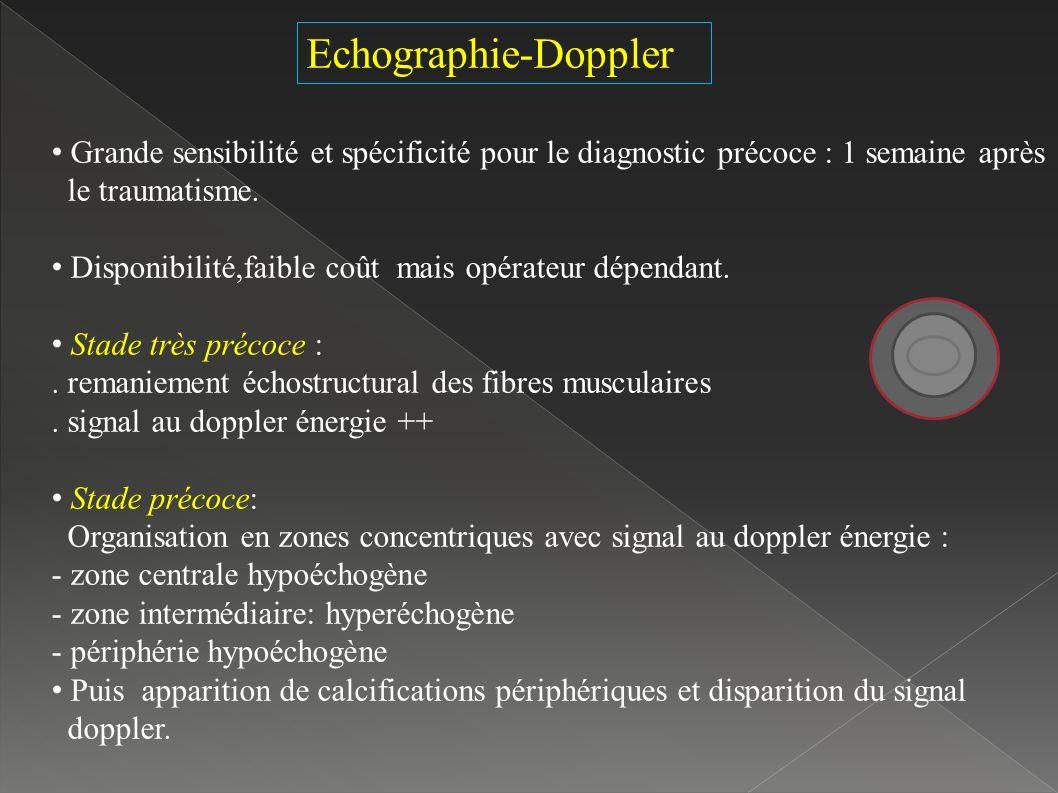 Echographie-Doppler Grande sensibilité et spécificité pour le diagnostic précoce : 1 semaine après.