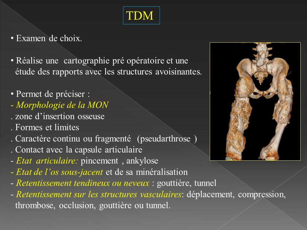 TDM Examen de choix. Réalise une cartographie pré opératoire et une