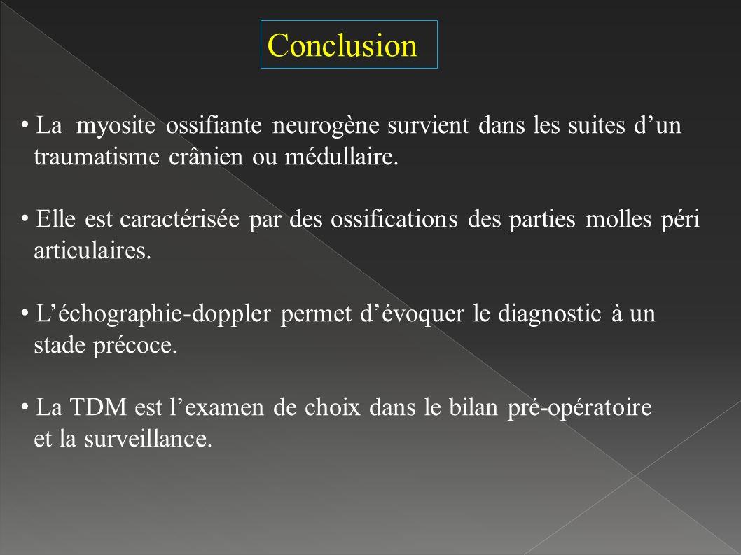 Conclusion La myosite ossifiante neurogène survient dans les suites d'un. traumatisme crânien ou médullaire.