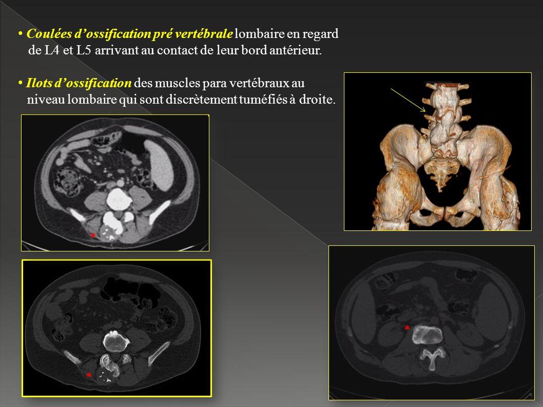 Coulées d'ossification pré vertébrale lombaire en regard