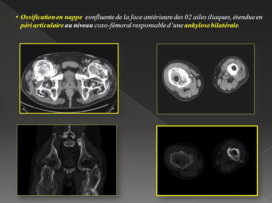 Ossification en nappe confluente de la face antérieure des 02 ailes iliaques, étendue en péri articulaire au niveau coxo-fémoral responsable d'une ankylose bilatérale.