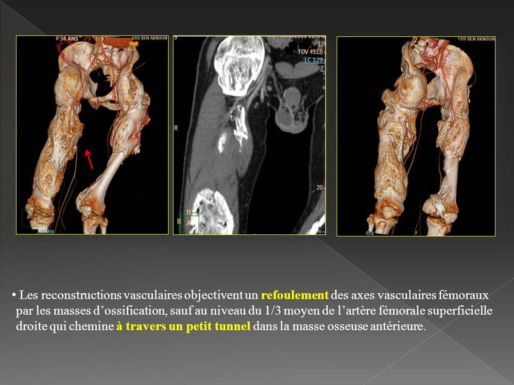Les reconstructions vasculaires objectivent un refoulement des axes vasculaires fémoraux par les masses d'ossification, sauf au niveau du 1/3 moyen de l'artère fémorale superficielle droite qui chemine à travers un petit tunnel dans la masse osseuse antérieure.