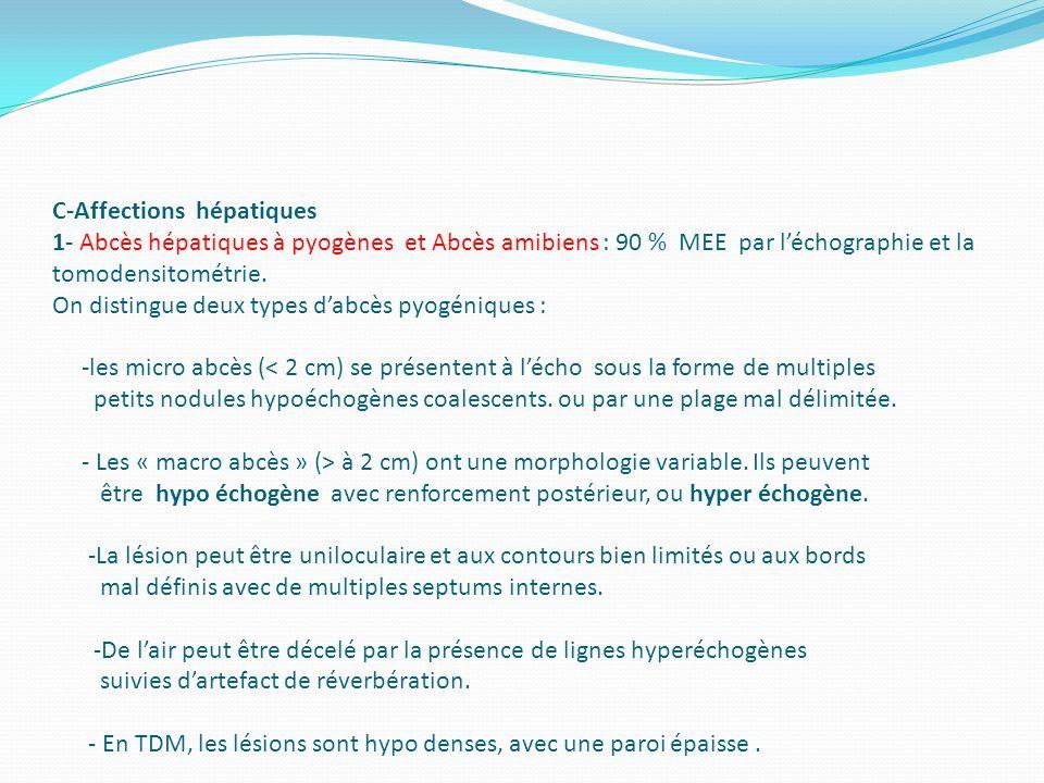 C-Affections hépatiques 1- Abcès hépatiques à pyogènes et Abcès amibiens : 90 % MEE par l'échographie et la tomodensitométrie.