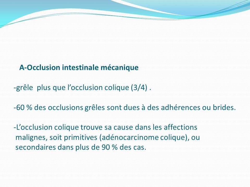 A-Occlusion intestinale mécanique -grêle plus que l'occlusion colique (3/4) .