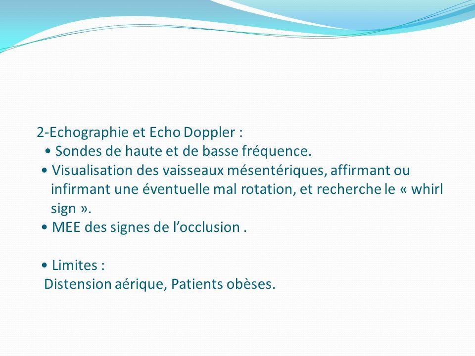 2-Echographie et Echo Doppler : • Sondes de haute et de basse fréquence.