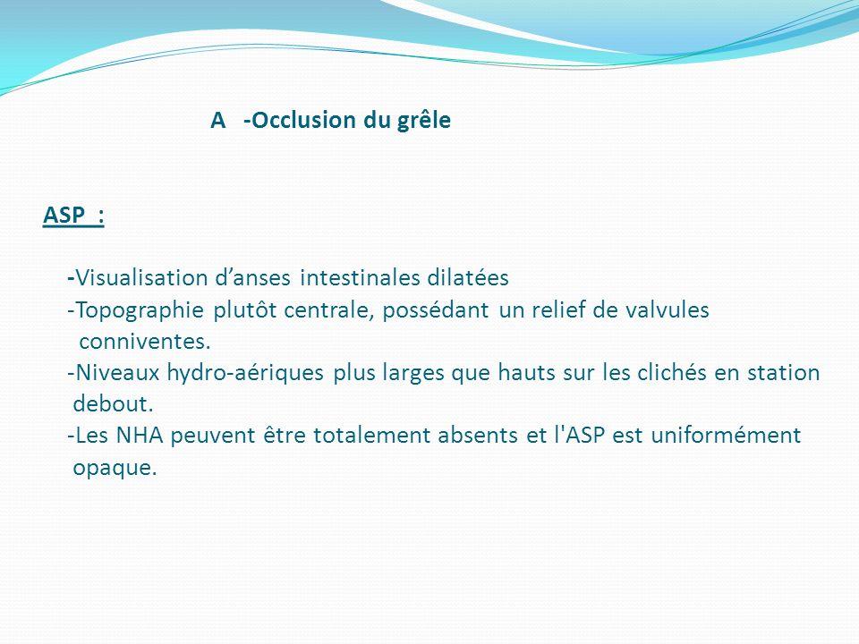 A -Occlusion du grêle ASP : -Visualisation d'anses intestinales dilatées -Topographie plutôt centrale, possédant un relief de valvules conniventes.