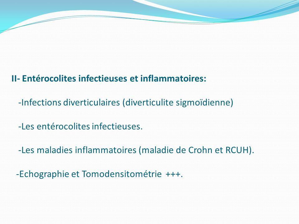 II- Entérocolites infectieuses et inflammatoires: -Infections diverticulaires (diverticulite sigmoïdienne) -Les entérocolites infectieuses.