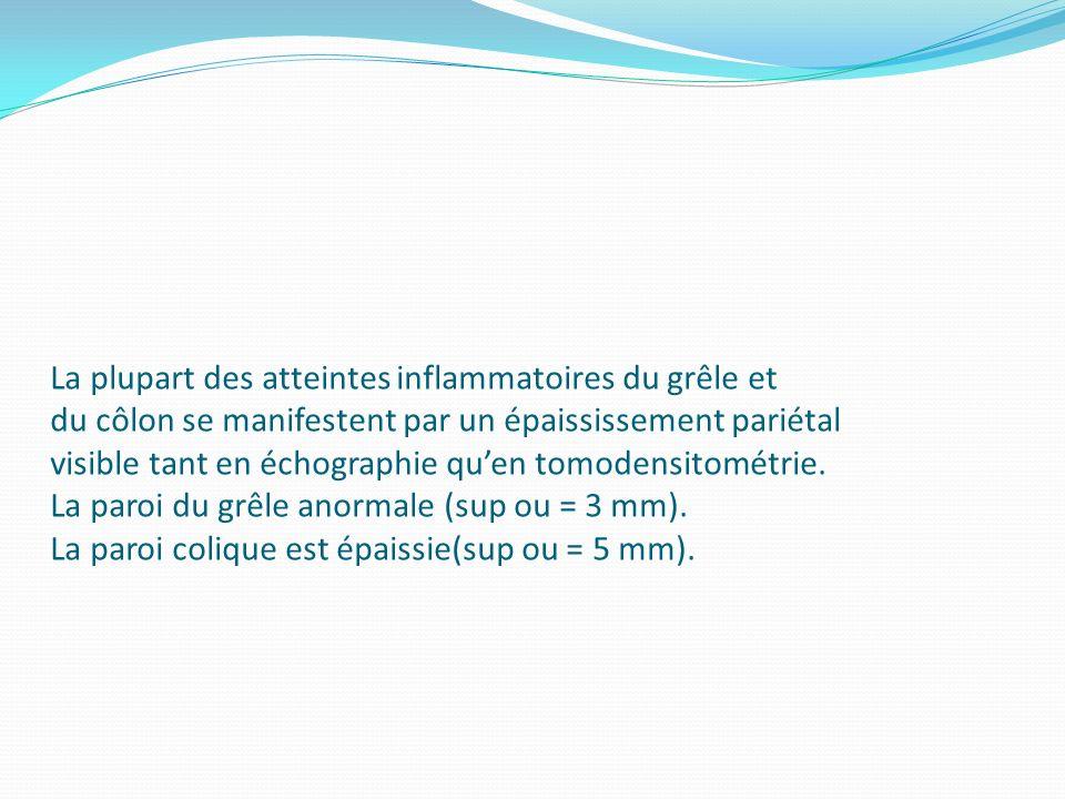 La plupart des atteintes inflammatoires du grêle et du côlon se manifestent par un épaississement pariétal visible tant en échographie qu'en tomodensitométrie.