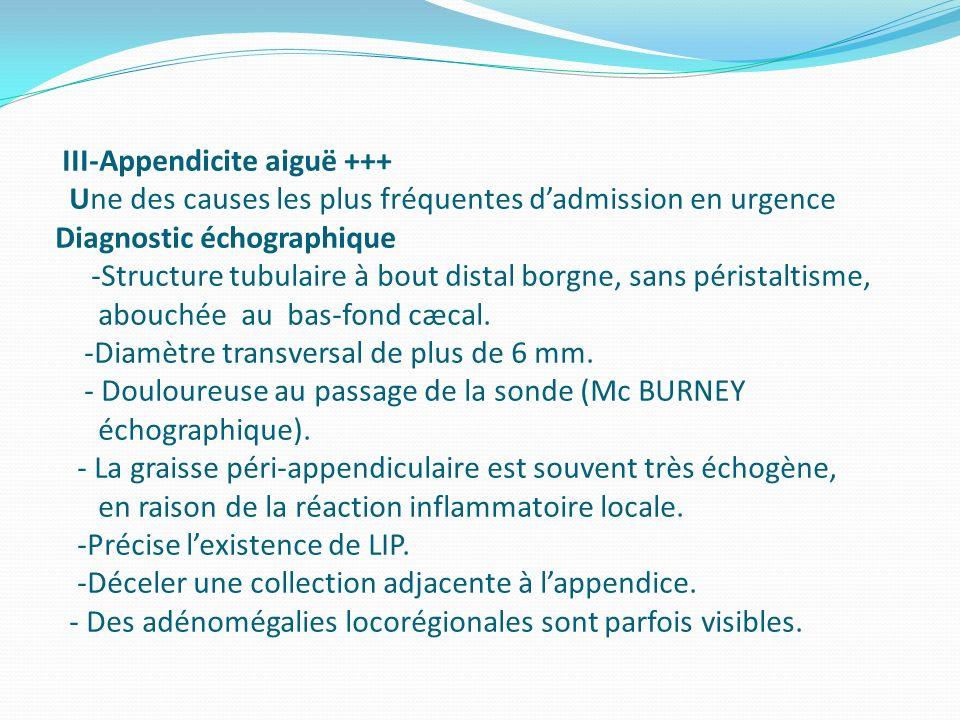 III-Appendicite aiguë +++ Une des causes les plus fréquentes d'admission en urgence Diagnostic échographique -Structure tubulaire à bout distal borgne, sans péristaltisme, abouchée au bas-fond cæcal.