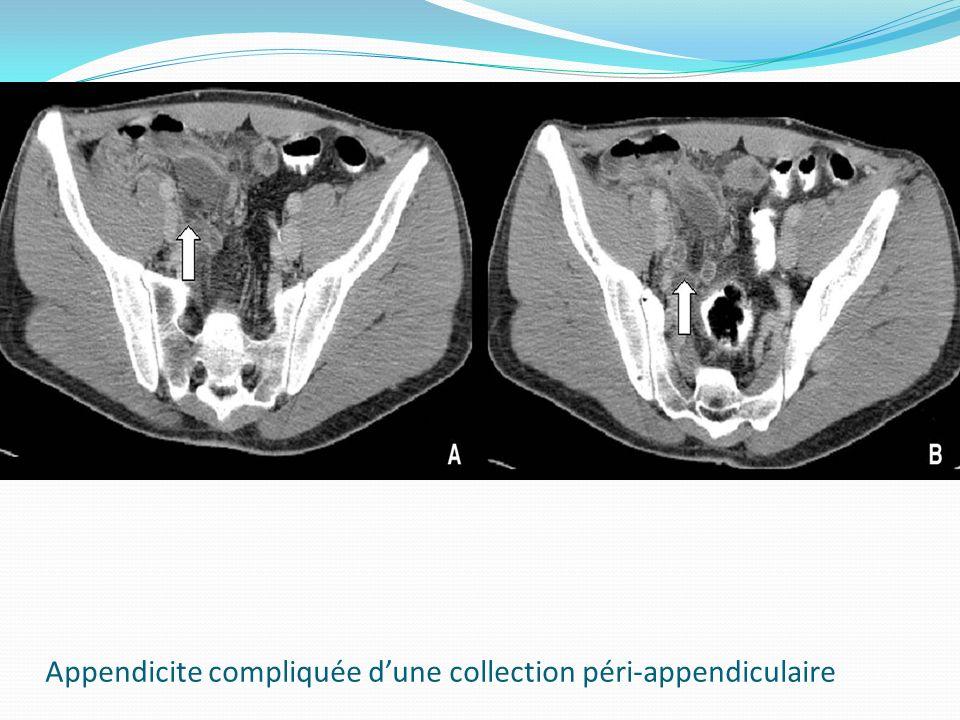 Appendicite compliquée d'une collection péri-appendiculaire