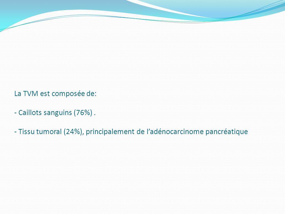 La TVM est composée de: - Caillots sanguins (76%)