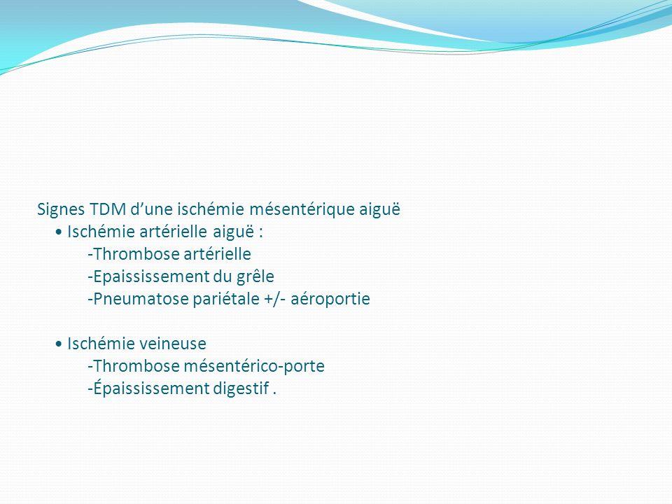 Signes TDM d'une ischémie mésentérique aiguë • Ischémie artérielle aiguë : -Thrombose artérielle -Epaississement du grêle -Pneumatose pariétale +/- aéroportie • Ischémie veineuse -Thrombose mésentérico-porte -Épaississement digestif .