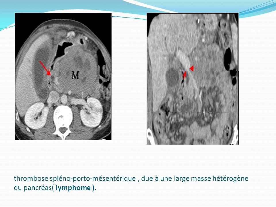thrombose spléno-porto-mésentérique , due à une large masse hétérogène du pancréas( lymphome ).
