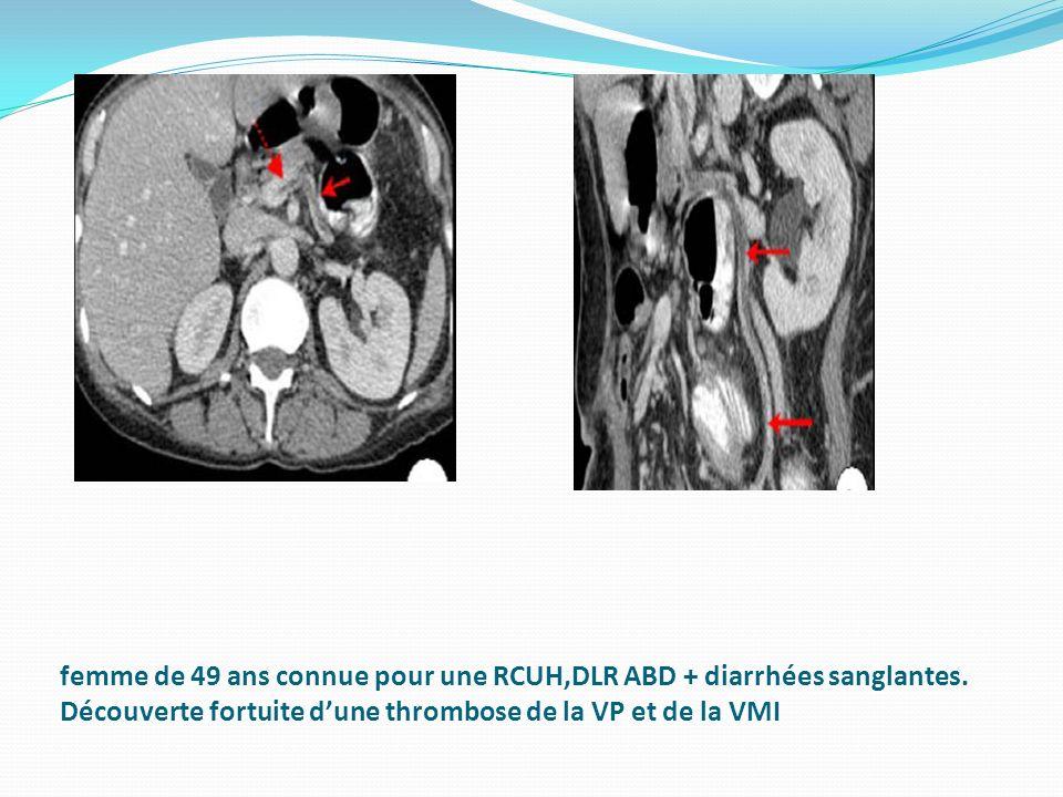 femme de 49 ans connue pour une RCUH,DLR ABD + diarrhées sanglantes