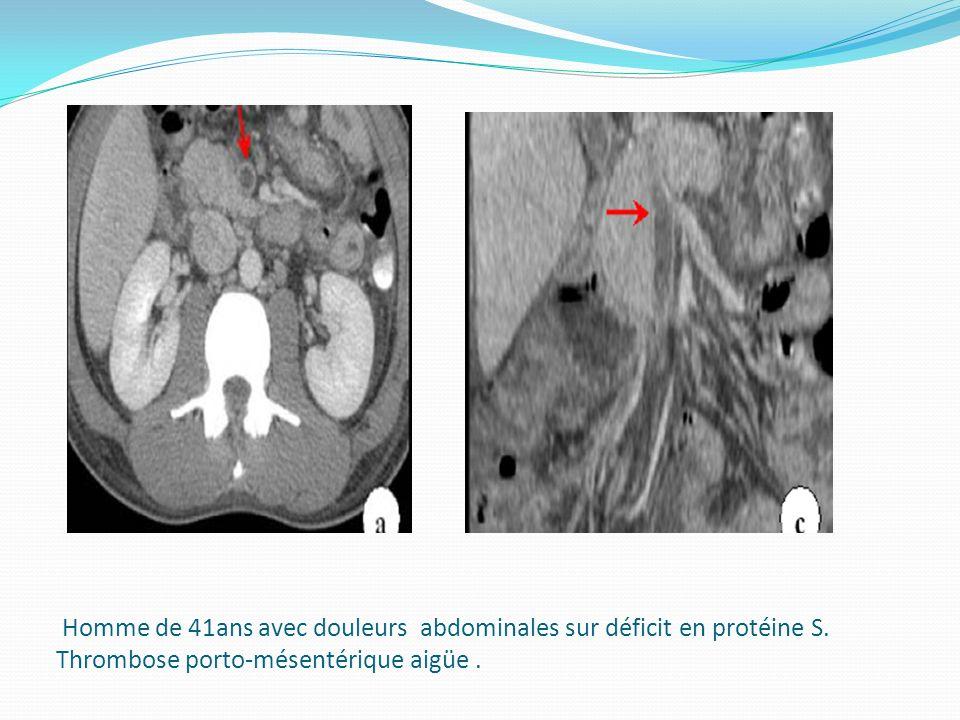 Homme de 41ans avec douleurs abdominales sur déficit en protéine S