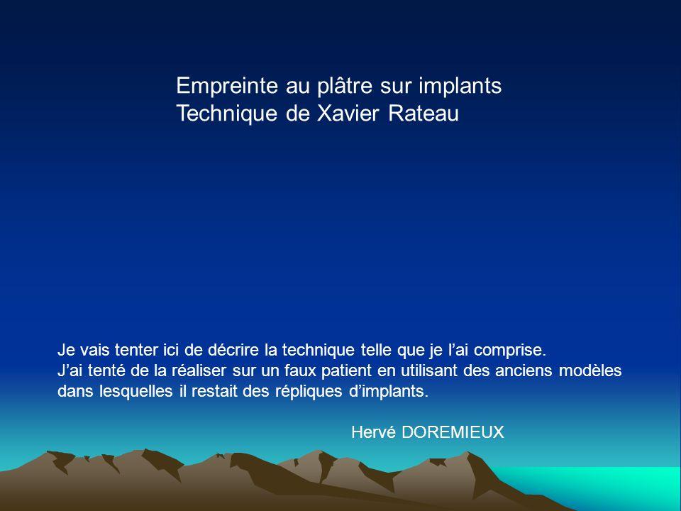 Empreinte au plâtre sur implants Technique de Xavier Rateau