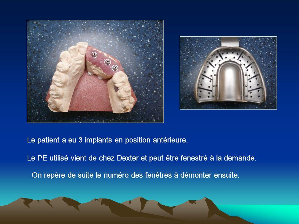 Le patient a eu 3 implants en position antérieure.