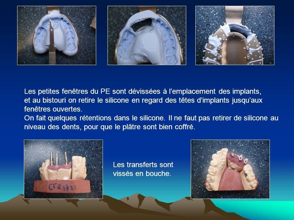 Les petites fenêtres du PE sont dévissées à l'emplacement des implants,