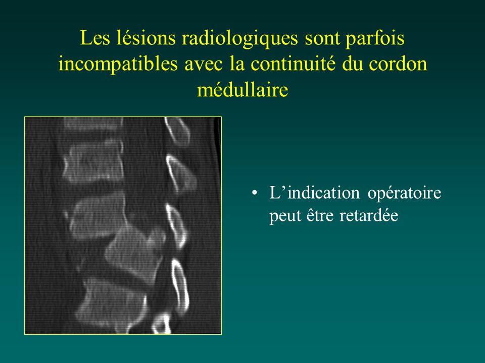 Les lésions radiologiques sont parfois incompatibles avec la continuité du cordon médullaire
