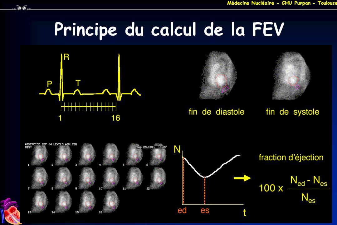 Principe du calcul de la FEV
