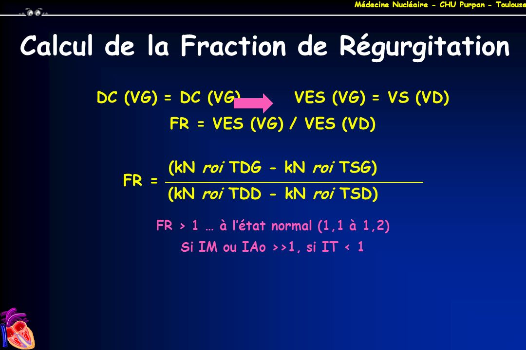 Calcul de la Fraction de Régurgitation