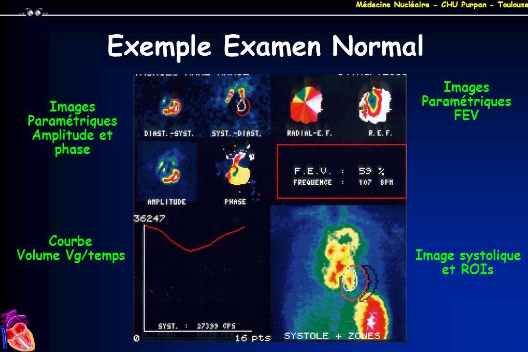 Exemple Examen Normal Images Paramétriques FEV Images Paramétriques