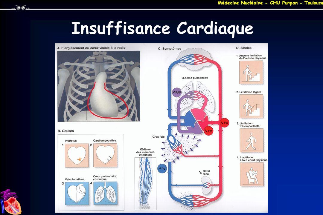 Insuffisance Cardiaque