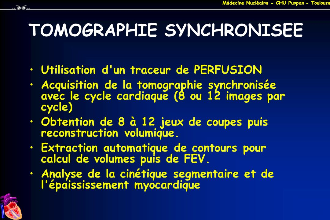 TOMOGRAPHIE SYNCHRONISEE