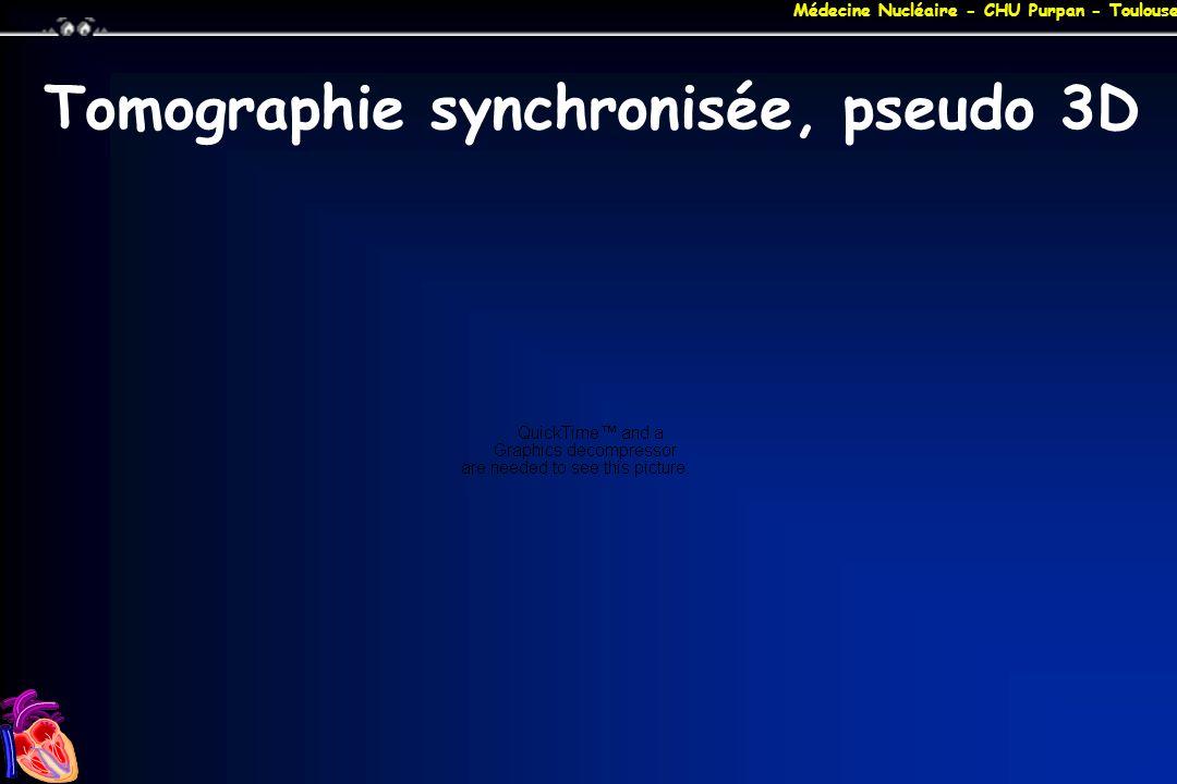 Tomographie synchronisée, pseudo 3D