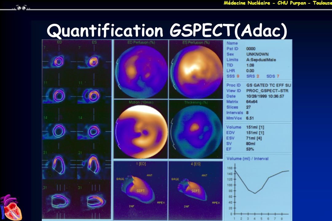 Quantification GSPECT(Adac)