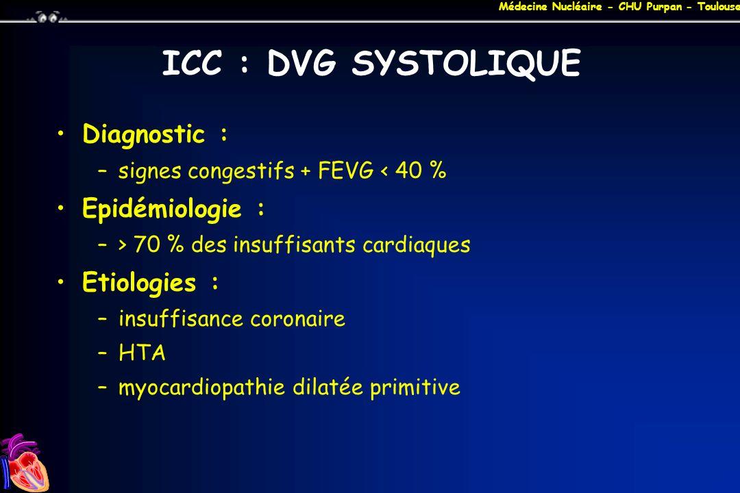 ICC : DVG SYSTOLIQUE Diagnostic : Epidémiologie : Etiologies :