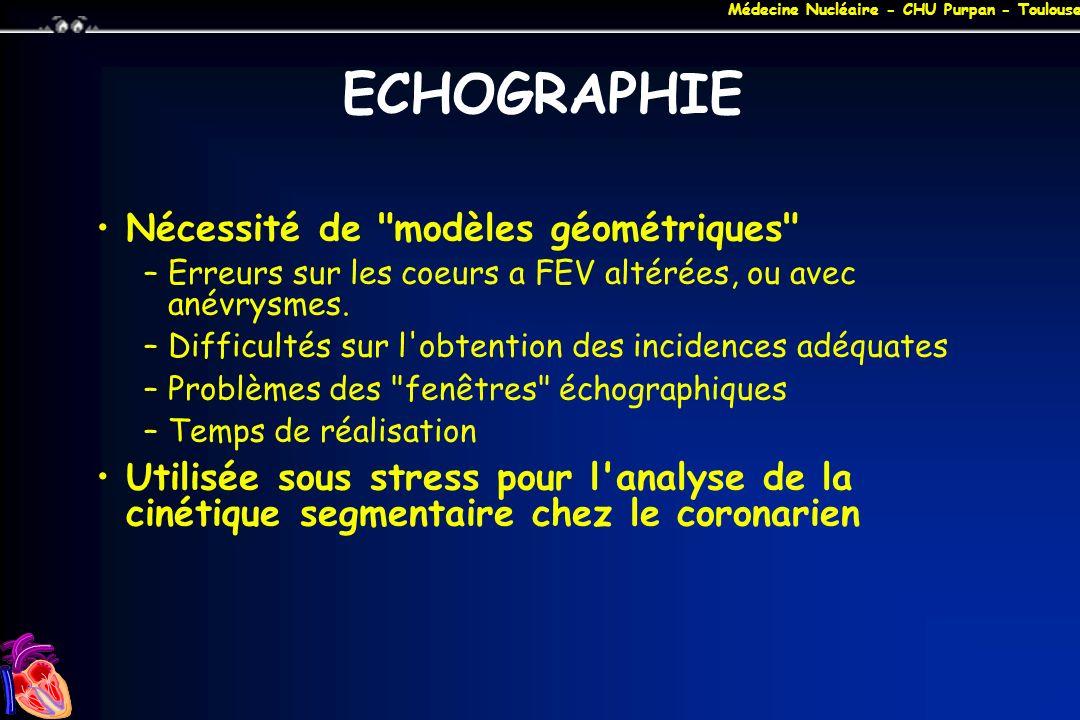 ECHOGRAPHIE Nécessité de modèles géométriques