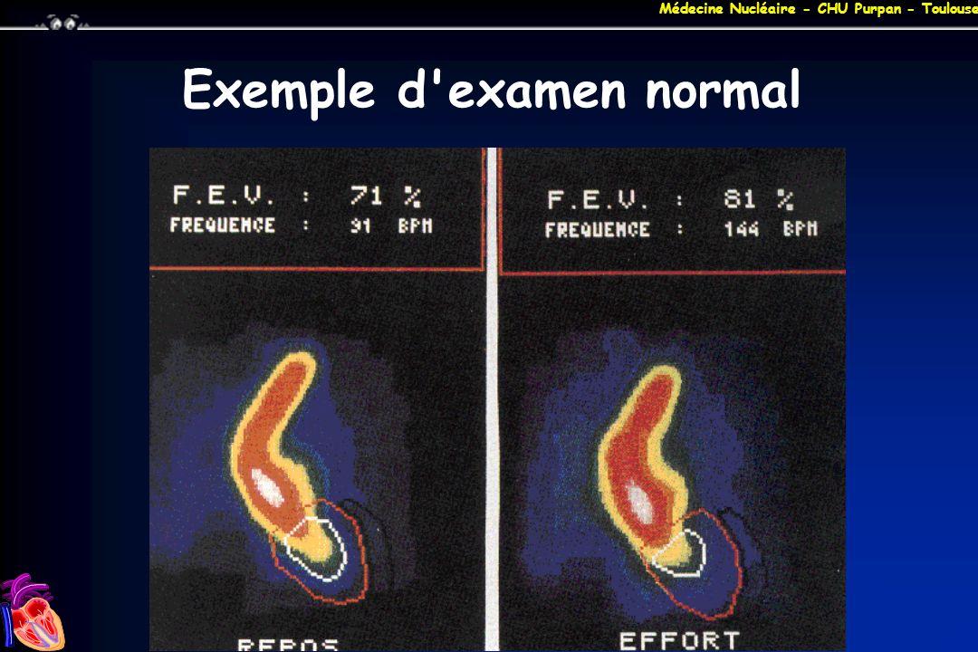 Exemple d examen normal