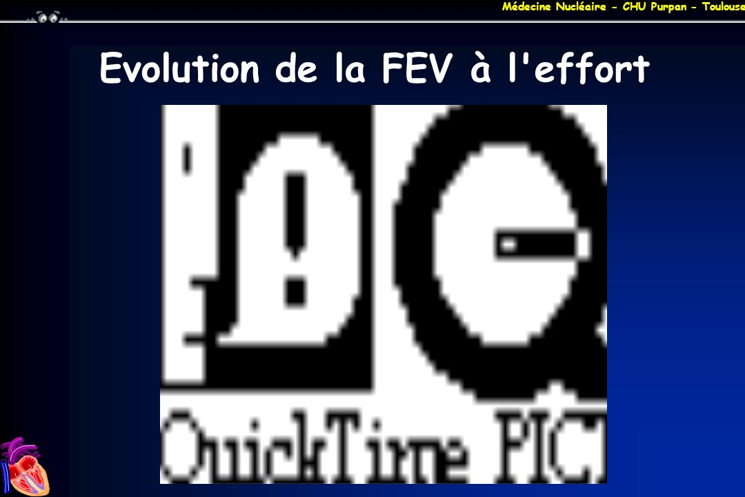Evolution de la FEV à l effort