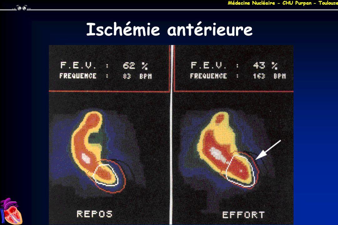 Ischémie antérieure