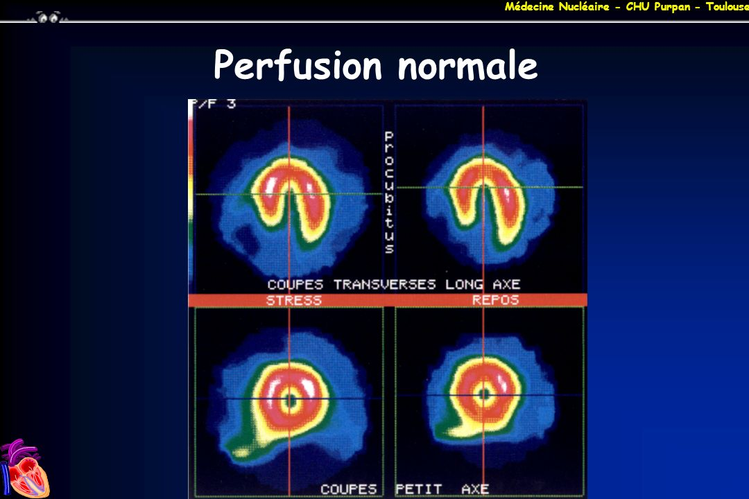 Perfusion normale