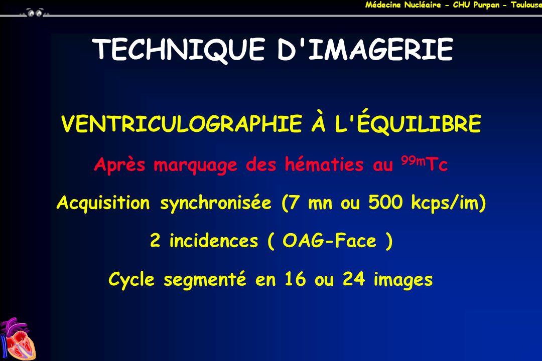 TECHNIQUE D IMAGERIE VENTRICULOGRAPHIE À L ÉQUILIBRE
