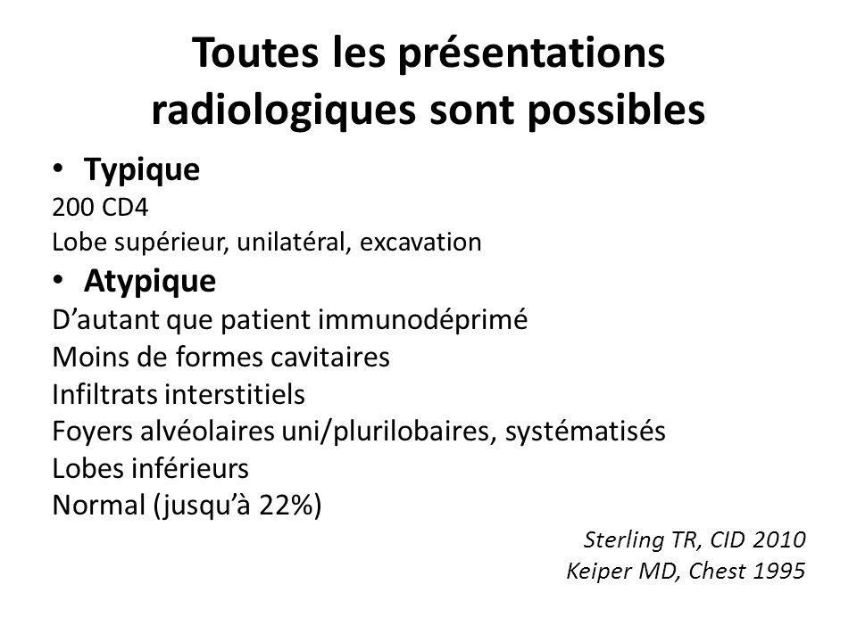 Toutes les présentations radiologiques sont possibles