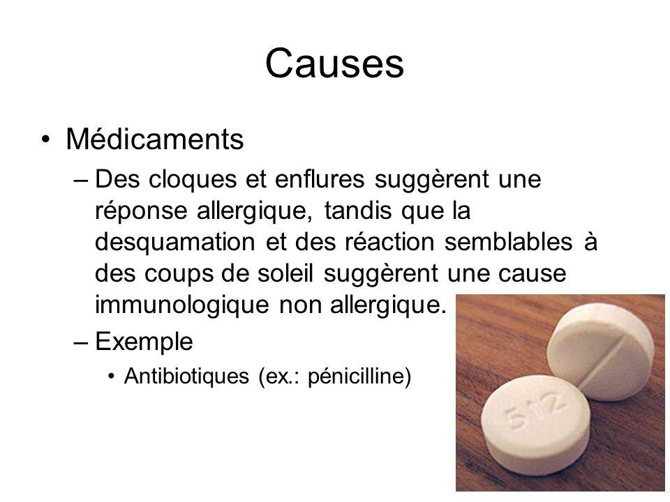 Causes Médicaments.
